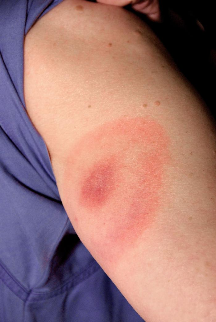 "Photo shows ""bull's-eye"" pattern rash on woman's arm after a tick bite. The woman later contracted Lyme disease. Photo credit:  CDC/ James Gathany"